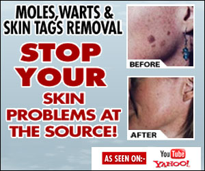 wart mole vanish skin tags