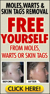 Moles, Warts & Skin Tags Removal