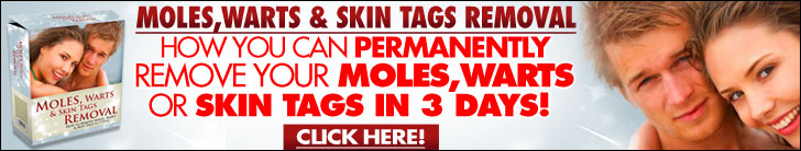 what is a skin tag