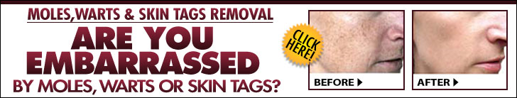 Skin Tag Removal Aftercare Instructions