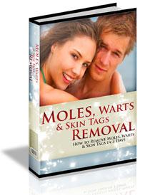 Moles, Warts & Skin Tags Removal�