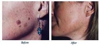 Elizabeth Miller - Before & After