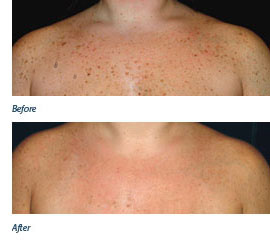 Chris's Skin Tags - Before & After